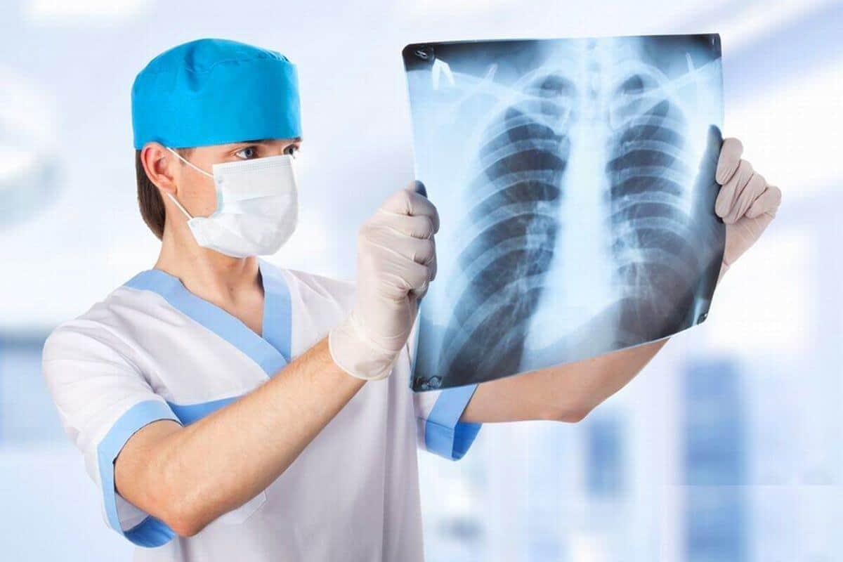 Рентгеновский снимок больного пневмонией фото