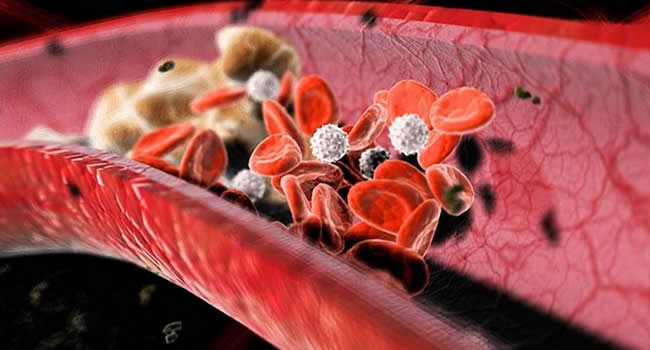Холестерин в крови фото