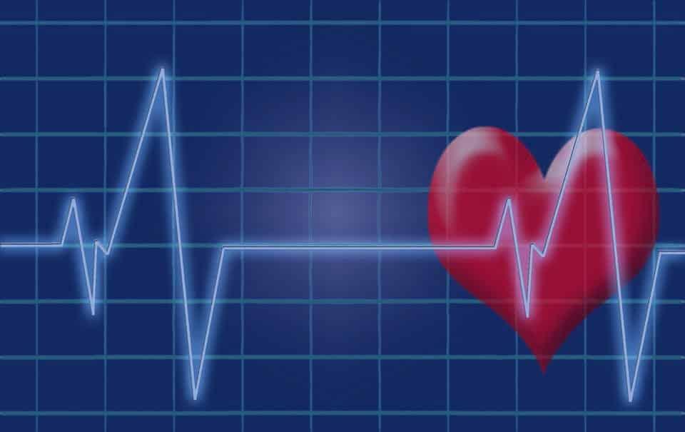 работа сердца кардиограмма картинка