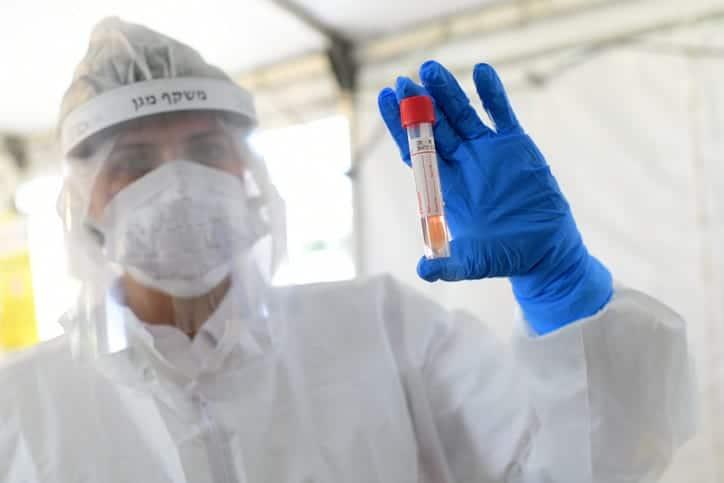 Test na koronavirus 1