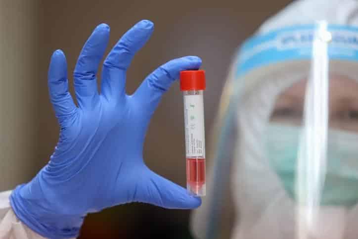 Тест на коронавирус фото