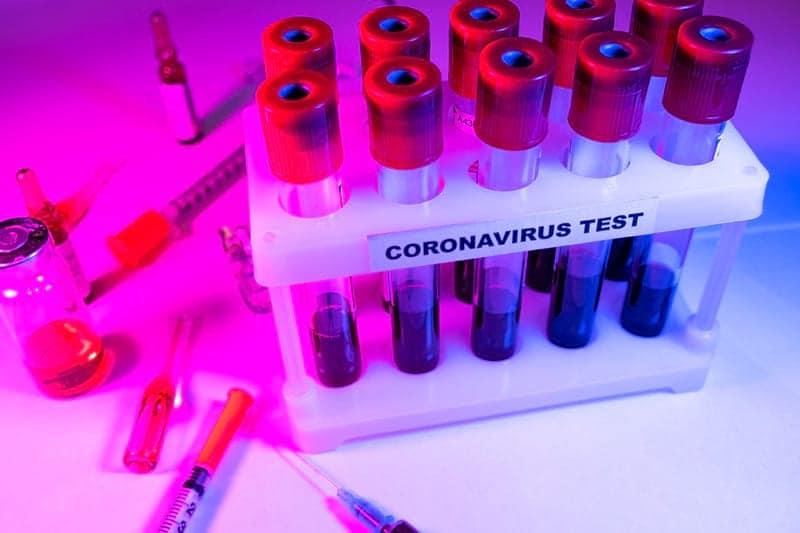 тест коронавирус пробирки картинка