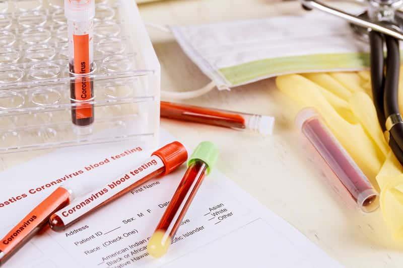 Тесты на коронавирус картинка