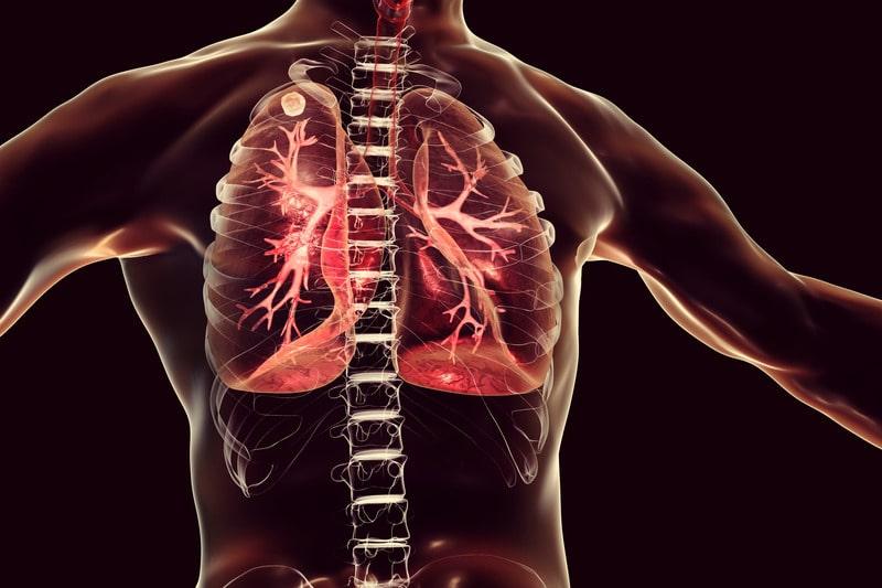 Туберкулез изображение