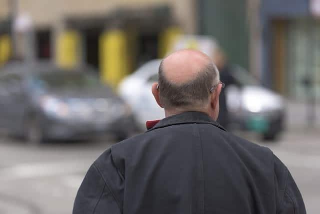 Лысеющий мужчина фото