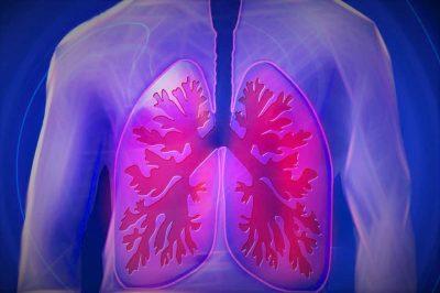 Ученые из Украины нашли способ предотвратить воспаление легких при COVID-19